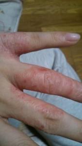 手荒れ 手湿疹